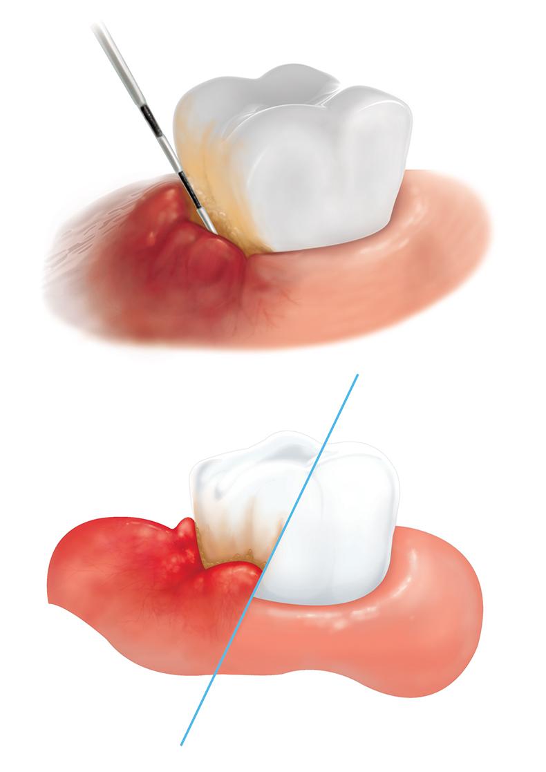 teeth-dig