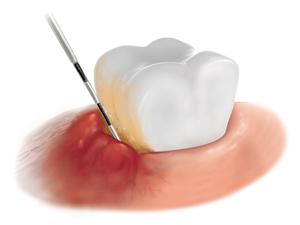 Oral illustration